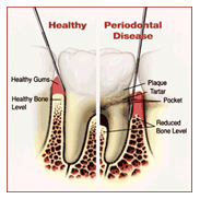 Gum Disease - Healthy Heart Dentistry in St. Petersburg