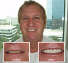 Downtown Dentist is St. Petersburg - Patient Testimonial